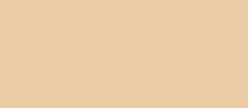 Vinci MSP Simulation