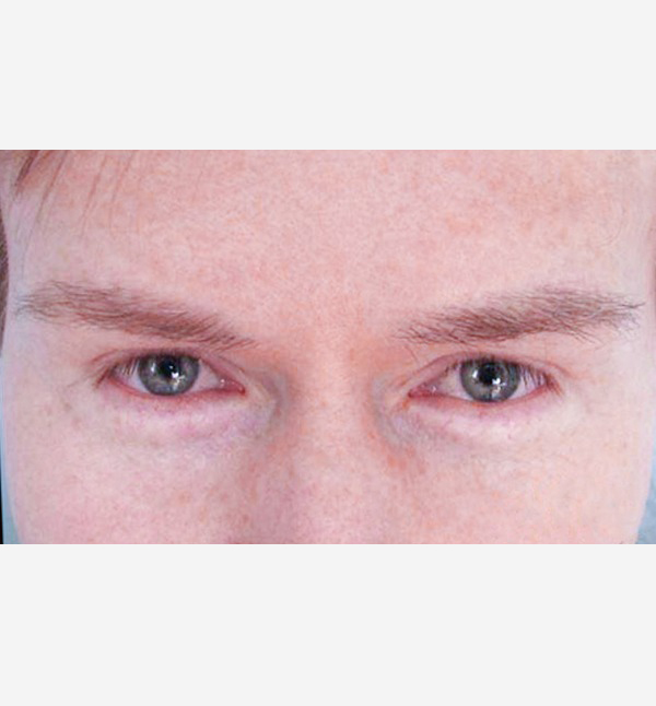 After-Mens eyebrow