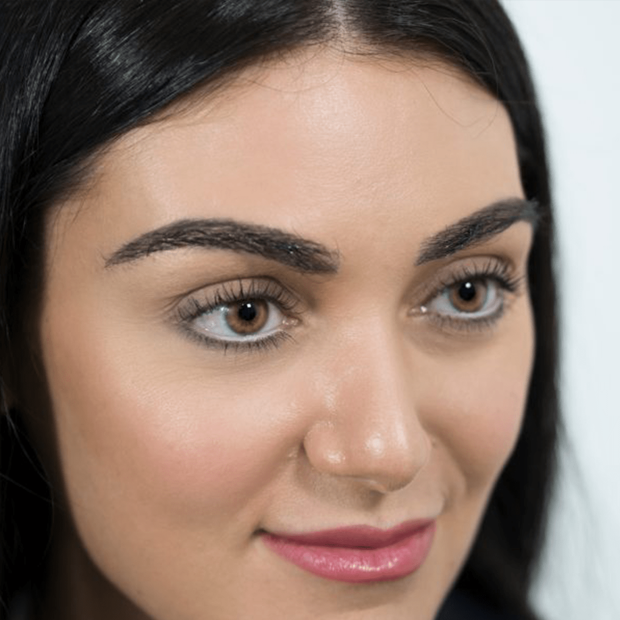After-Female Eyebrow Transplant