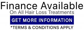 Finance-Available-Vinci Hair clinic